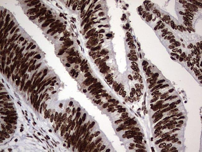PARP1 Antibody in Immunohistochemistry (Paraffin) (IHC (P))