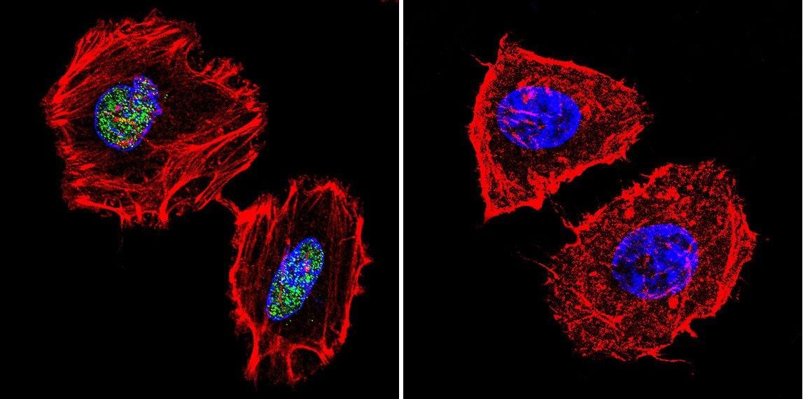 PARP1 Antibody in Immunocytochemistry (ICC/IF)