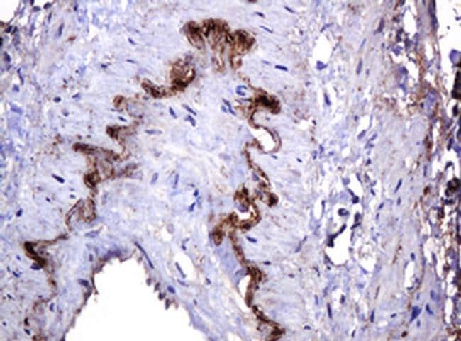 PARVB Antibody in Immunohistochemistry (Paraffin) (IHC (P))