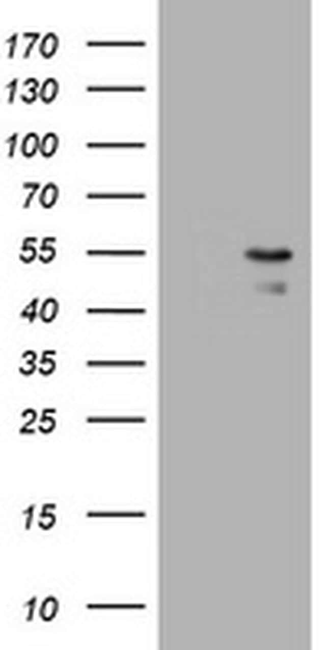 PARVB Antibody in Western Blot (WB)