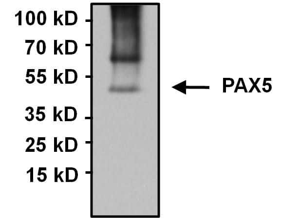 PAX5 Antibody in Immunoprecipitation (IP)