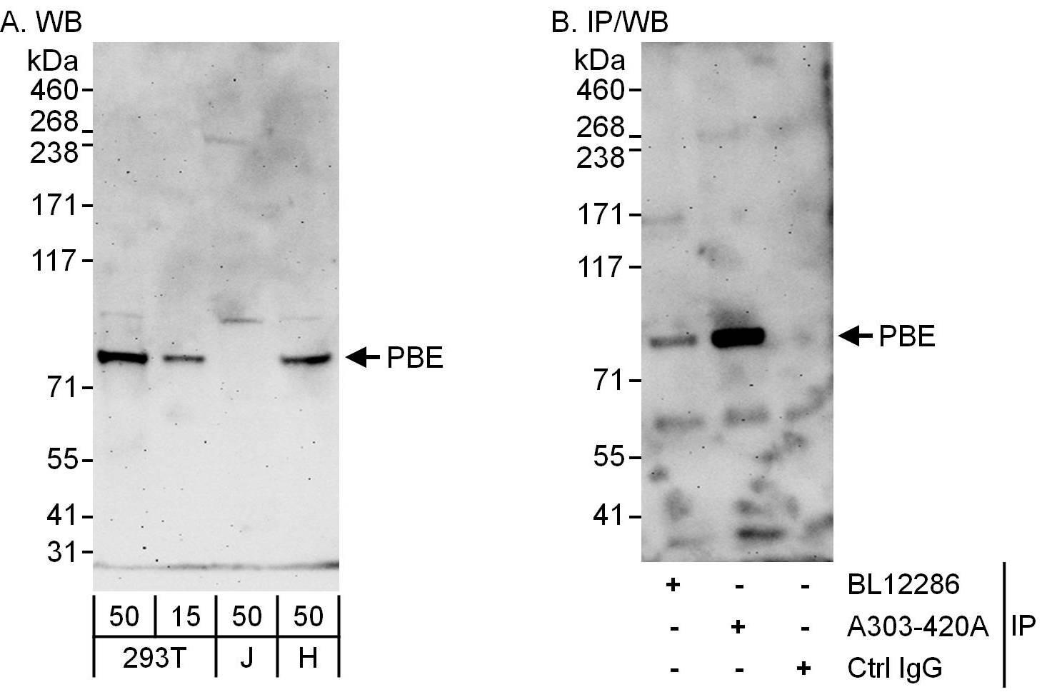 PBE Antibody in Western Blot (WB)
