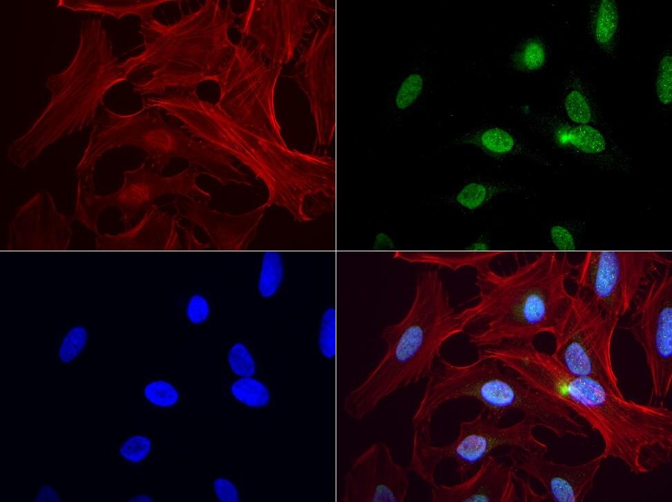 PBX1 Antibody in Immunofluorescence (IF)
