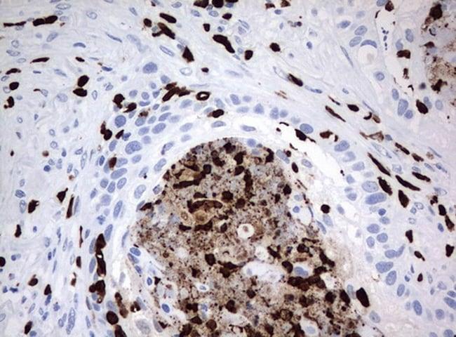 PBX1 Antibody in Immunohistochemistry (Paraffin) (IHC (P))