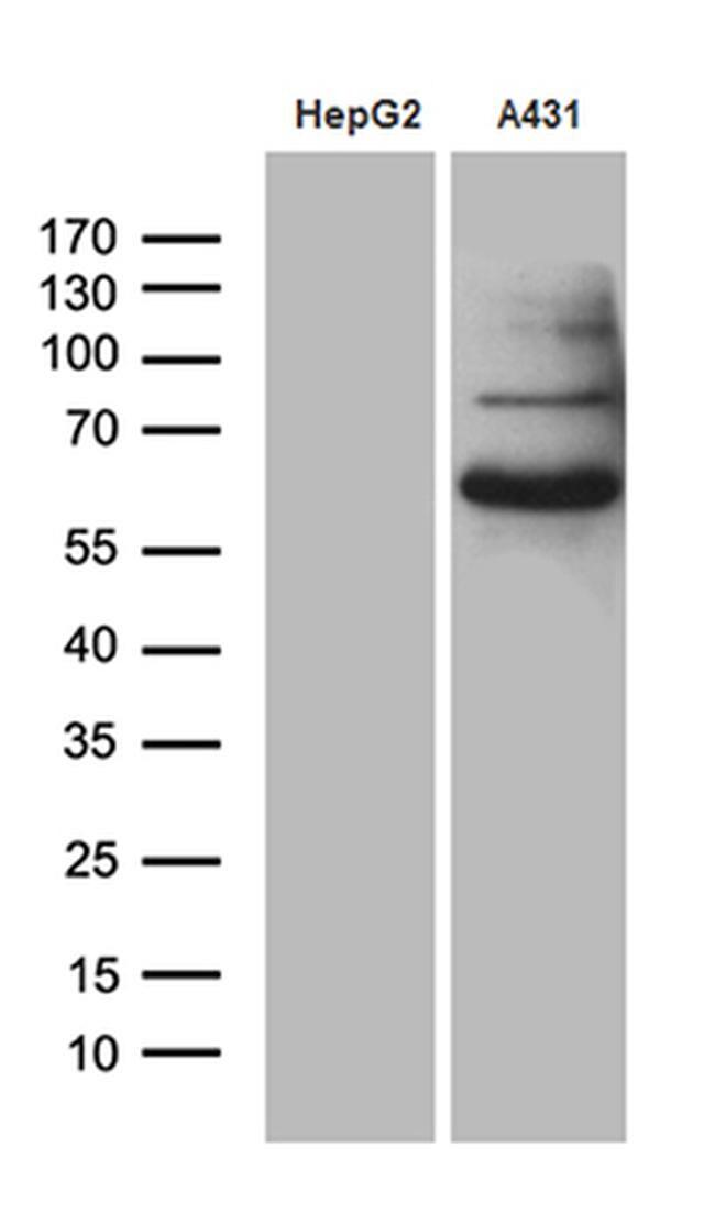 PCSK9 Antibody in Western Blot (WB)