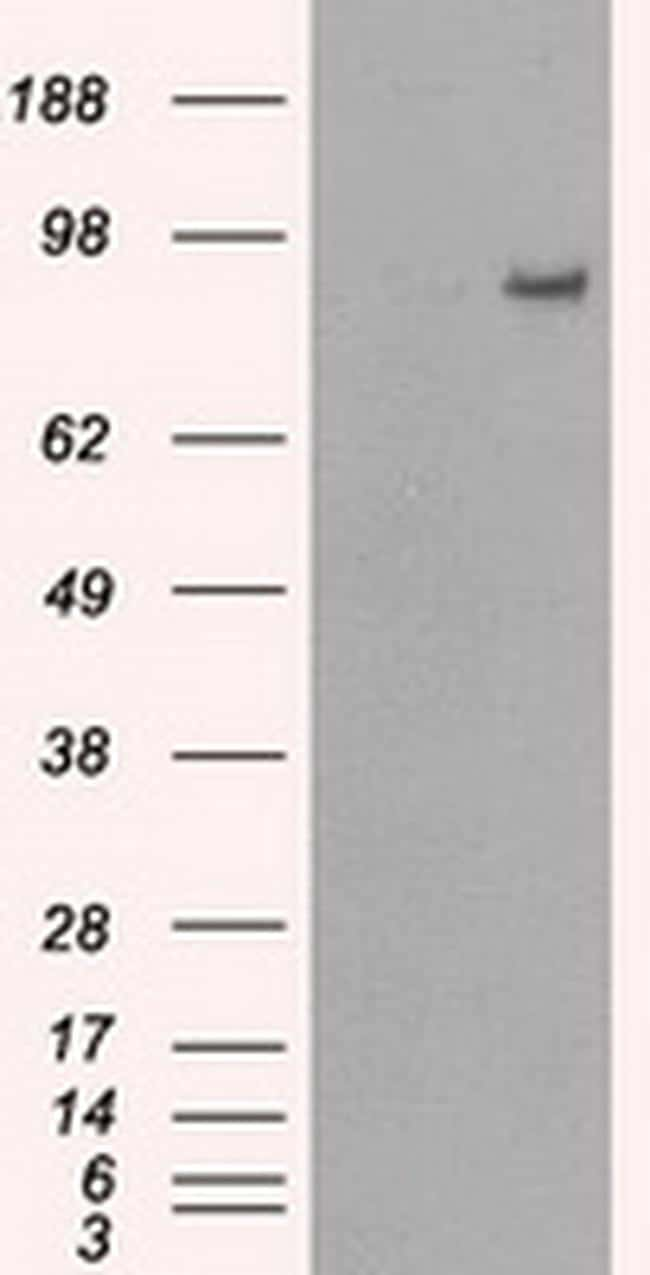 PDE10A Antibody in Western Blot (WB)