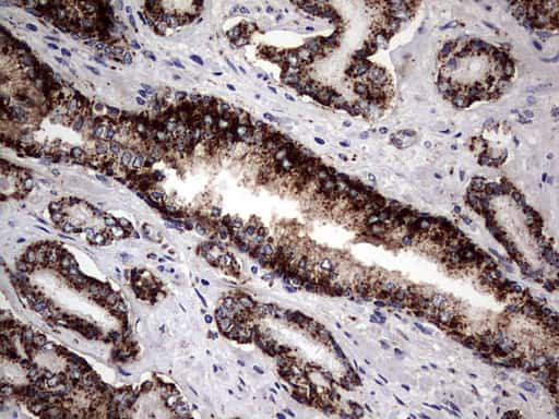 PDE1A Antibody in Immunohistochemistry (Paraffin) (IHC (P))