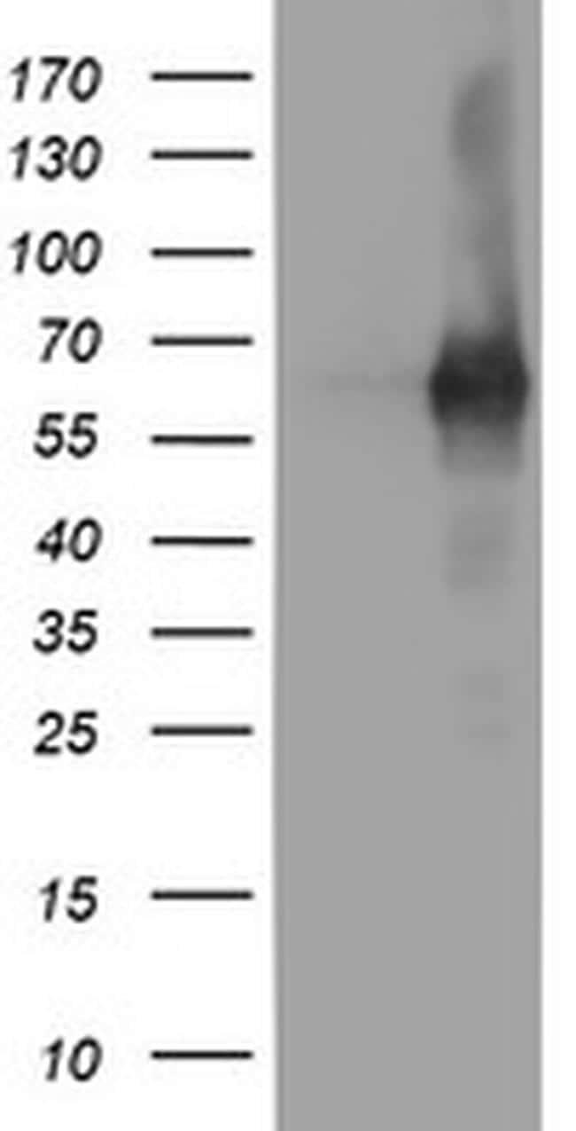 PDE1B Antibody in Western Blot (WB)