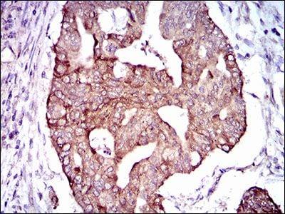 PDE1B Antibody in Immunohistochemistry (IHC)
