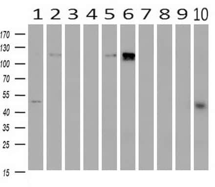PDE2A Antibody in Western Blot (WB)