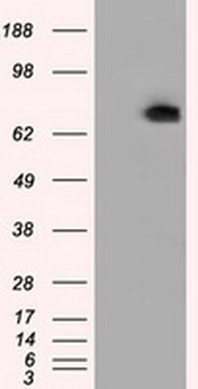 PDE4A Antibody in Western Blot (WB)