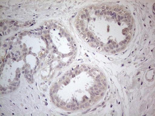 PDGFRA Antibody in Immunohistochemistry (Paraffin) (IHC (P))