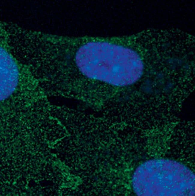 PDGFRB Antibody in Immunofluorescence (IF)