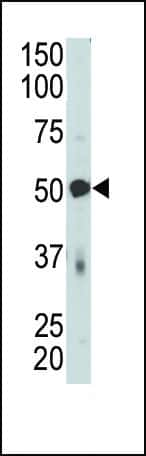 PDK4 Antibody in Western Blot (WB)