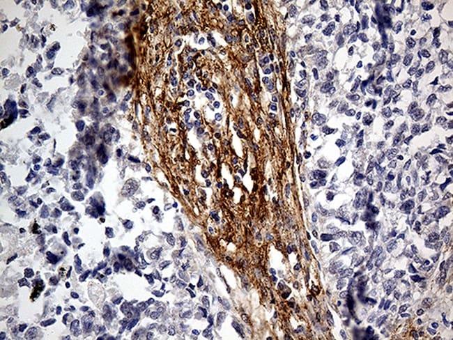 PDPN Antibody in Immunohistochemistry (Paraffin) (IHC (P))