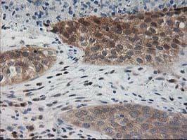 PDXK Antibody in Immunohistochemistry (Paraffin) (IHC (P))