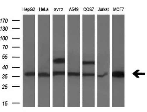 PDXK Antibody in Western Blot (WB)