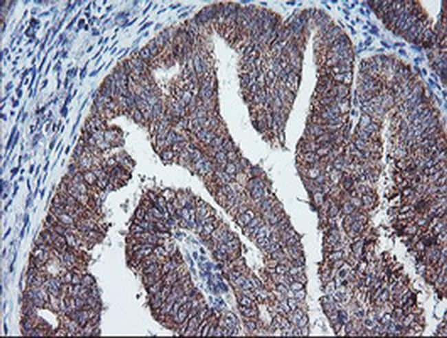 PECI Antibody in Immunohistochemistry (Paraffin) (IHC (P))