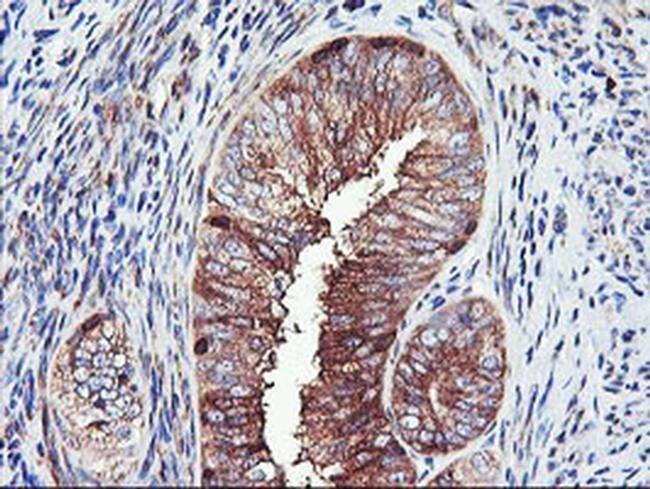 PFKP Antibody in Immunohistochemistry (Paraffin) (IHC (P))