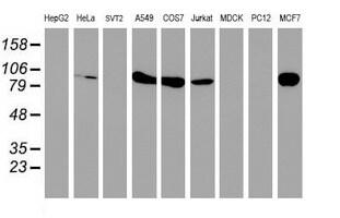 PFKP Antibody in Western Blot (WB)