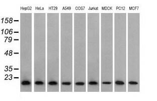 PFN1 Antibody in Western Blot (WB)