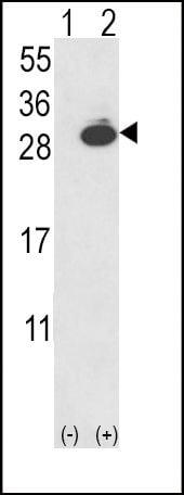 PGP9.5 Antibody in Western Blot (WB)