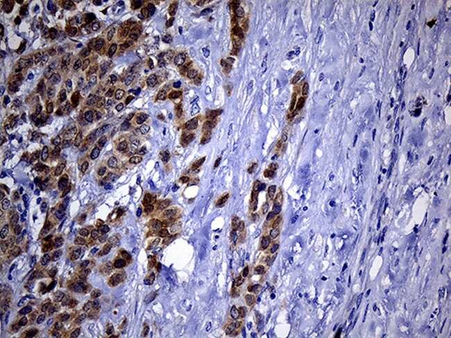 PHYHD1 Antibody in Immunohistochemistry (Paraffin) (IHC (P))
