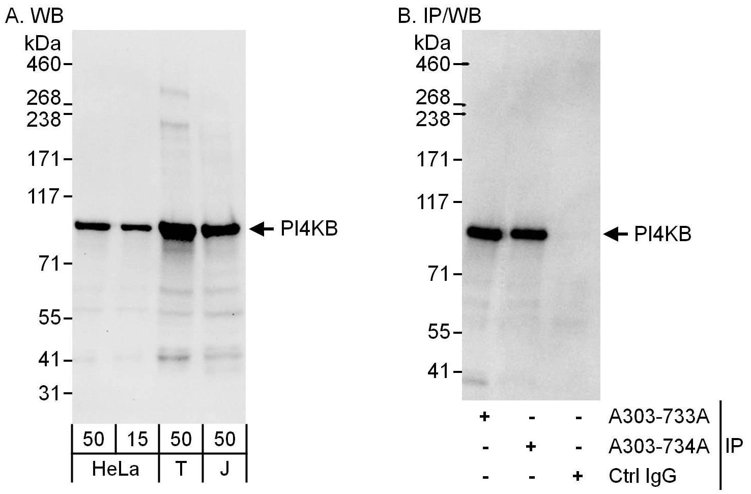 PI4KB Antibody in Western Blot (WB)