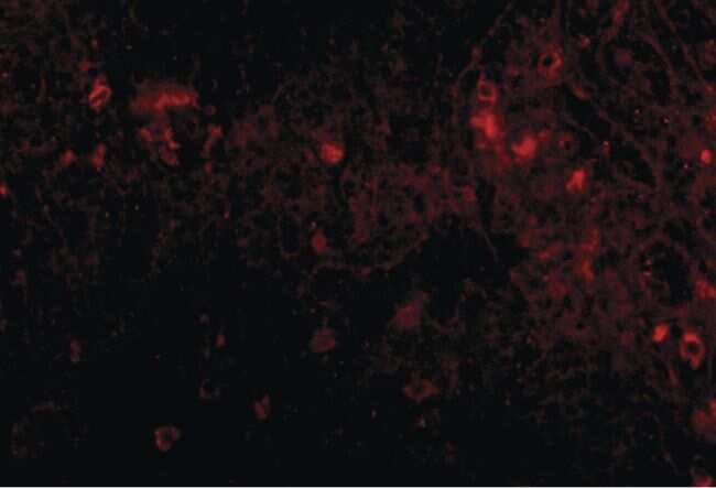 PIGY Antibody in Immunohistochemistry (IHC)