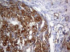 PIK3C2A Antibody in Immunohistochemistry (Paraffin) (IHC (P))