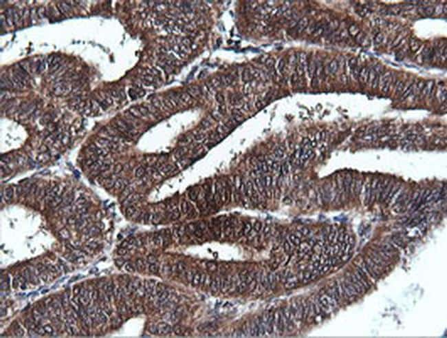 PIK3C2B Antibody in Immunohistochemistry (Paraffin) (IHC (P))