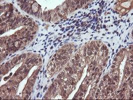 PIK3CG Antibody in Immunohistochemistry (Paraffin) (IHC (P))