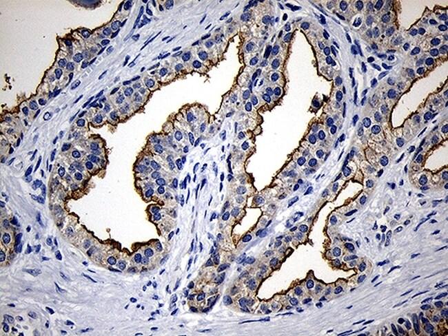 PIKFYVE Antibody in Immunohistochemistry (Paraffin) (IHC (P))