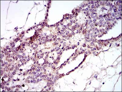 PIWIL4 Antibody in Immunohistochemistry (IHC)