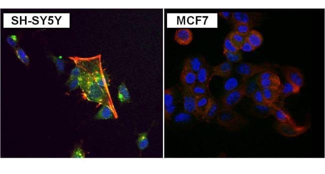 PKC alpha Antibody in Immunofluorescence (IF)