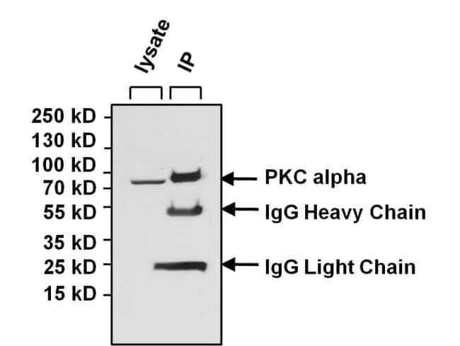 PKC alpha Antibody in Immunoprecipitation (IP)