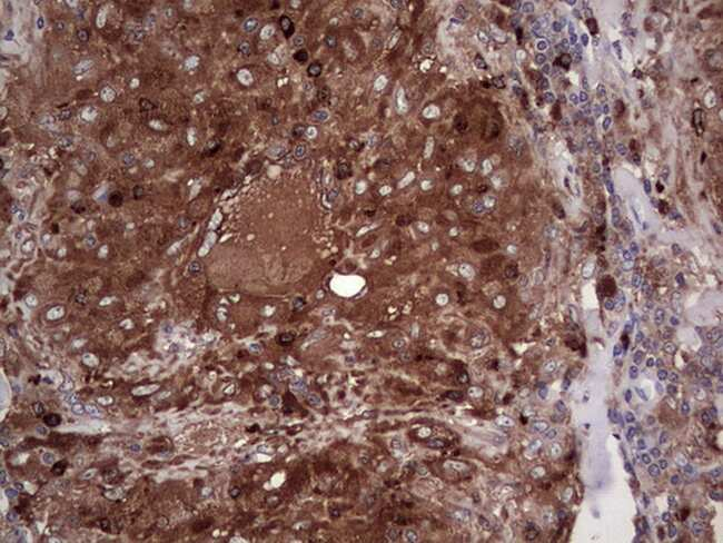 PKM2 Antibody in Immunohistochemistry (Paraffin) (IHC (P))