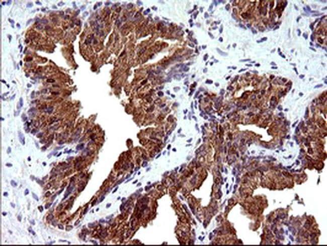 PLA2G16 Antibody in Immunohistochemistry (Paraffin) (IHC (P))