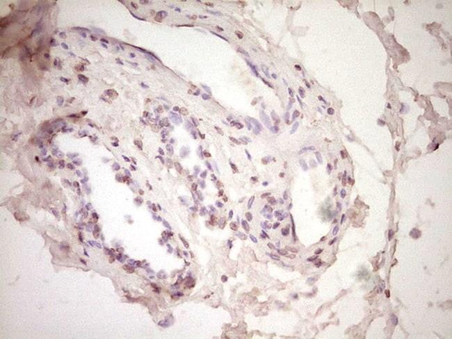 PLAT Antibody in Immunohistochemistry (Paraffin) (IHC (P))