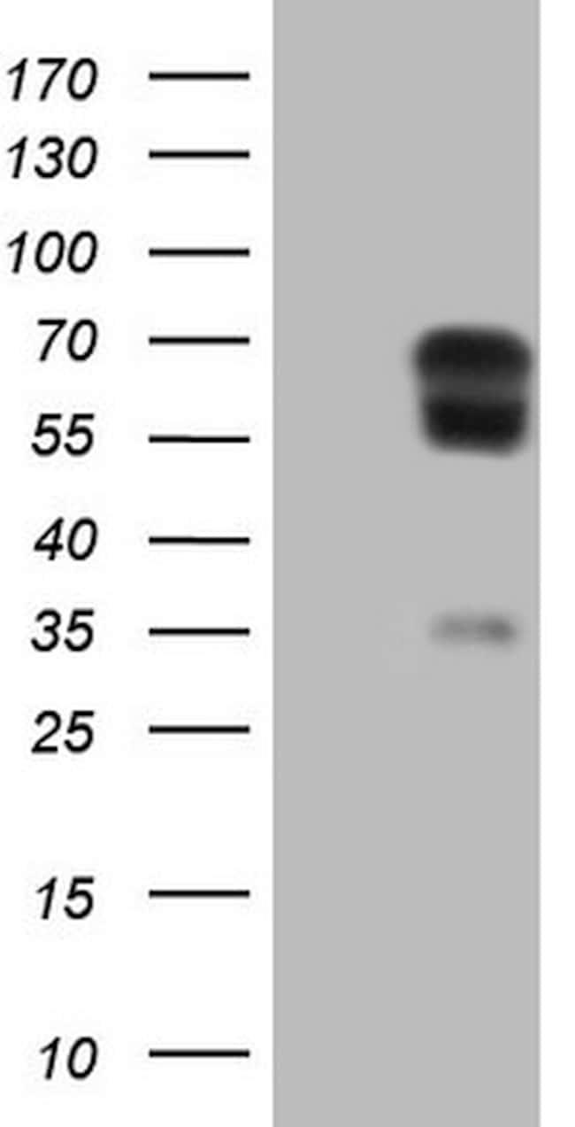 PLAT Antibody in Western Blot (WB)