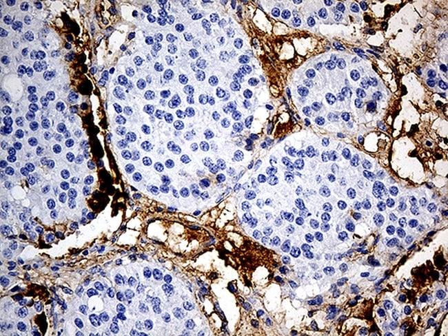 PLG Antibody in Immunohistochemistry (Paraffin) (IHC (P))