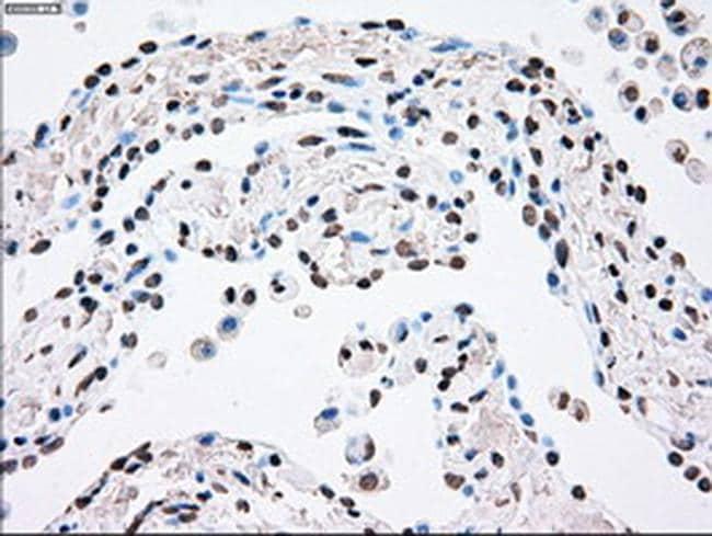 PLK1 Antibody in Immunohistochemistry (Paraffin) (IHC (P))