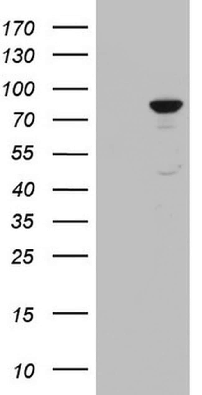 PLOD2 Antibody in Western Blot (WB)