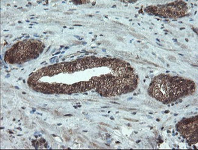 PMEL Antibody in Immunohistochemistry (Paraffin) (IHC (P))