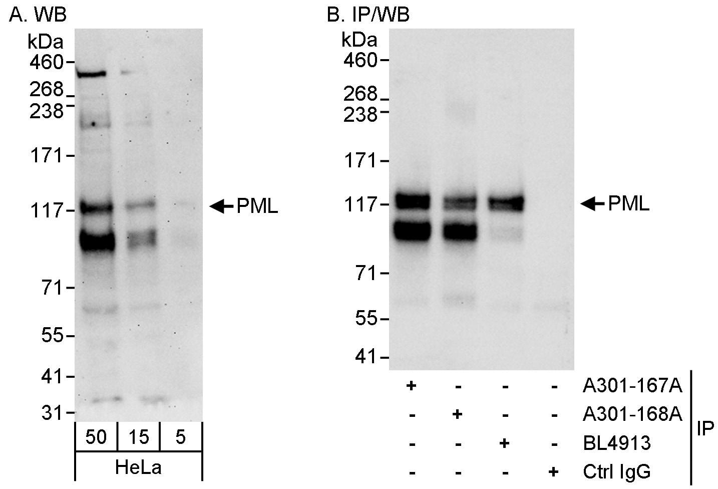PML Antibody in Western Blot (WB)