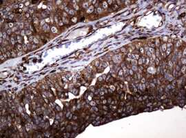 POGK Antibody in Immunohistochemistry (Paraffin) (IHC (P))