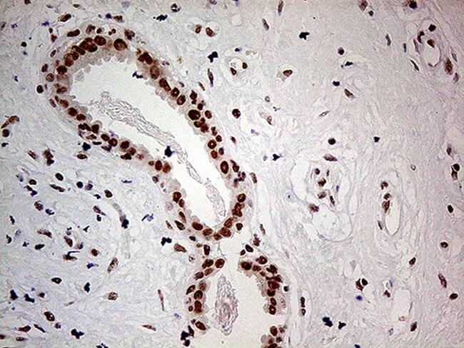POLR2A Antibody in Immunohistochemistry (Paraffin) (IHC (P))