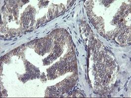 POLR3C Antibody in Immunohistochemistry (Paraffin) (IHC (P))