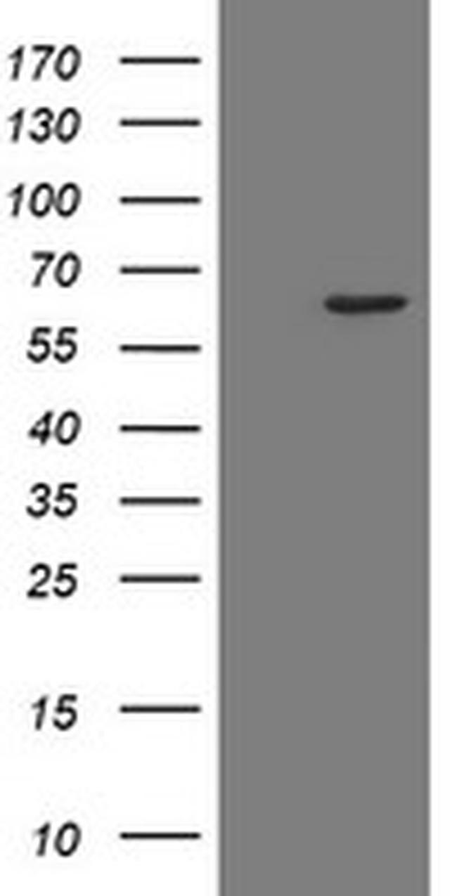 POLR3C Antibody in Western Blot (WB)