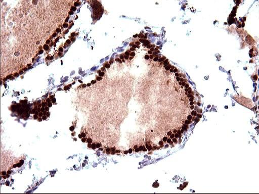 POLR3GL Antibody in Immunohistochemistry (Paraffin) (IHC (P))